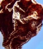 Shriveled heart